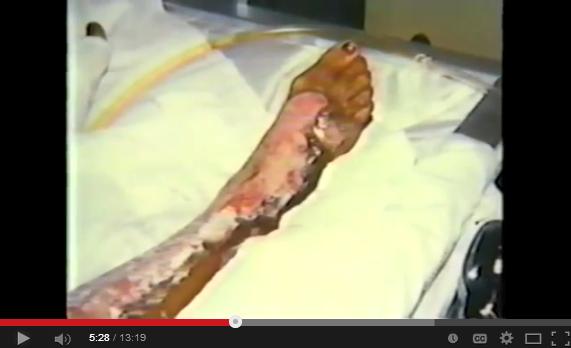 1985 Ross Dress for Less Explodes Youtube snap 4 burn injury Benita Harris